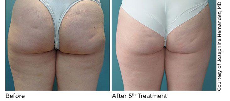 Pellefirm Cellulite Treatment