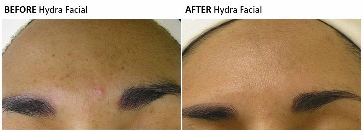 HydraFacial Before Amp After