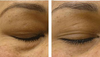 Undereye-Puffiness-Treatment-2