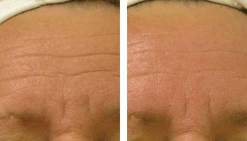 Wrinkles-Reduction