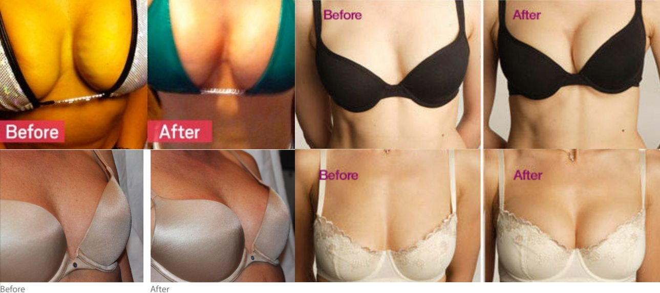 Vampire-Breastlift-before-and-after-shots | Face Rx MD Medspa